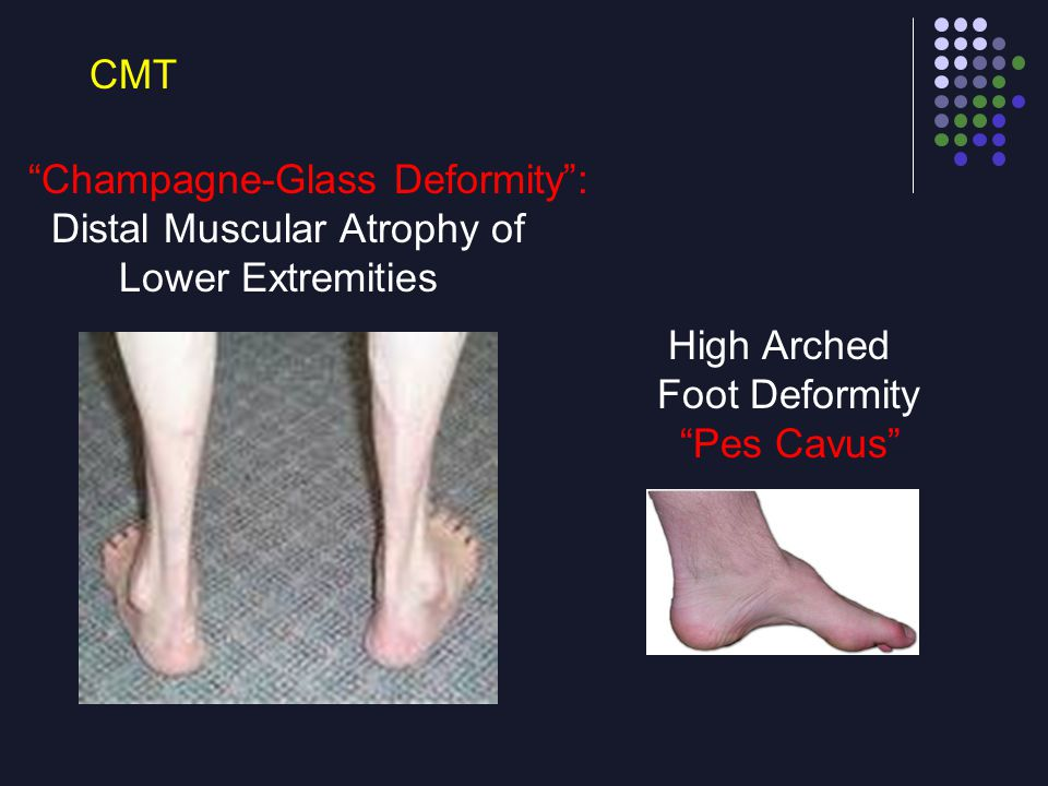 CMT Champagne-Glass Deformity : Distal Muscular Atrophy of. Lower Extremities. High Arched. Foot Deformity.