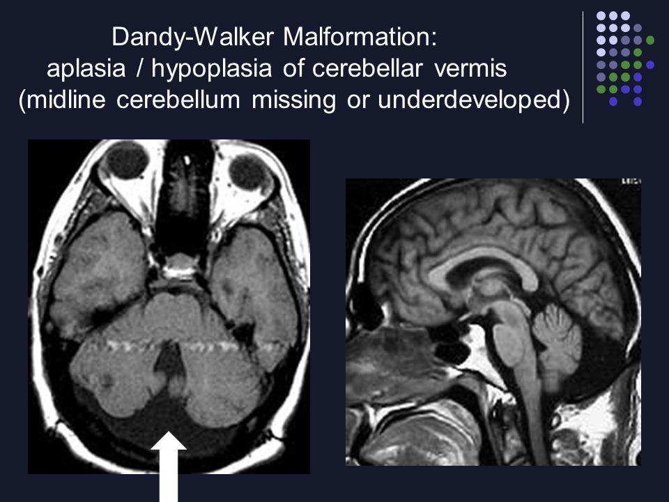 Dandy-Walker Malformation: