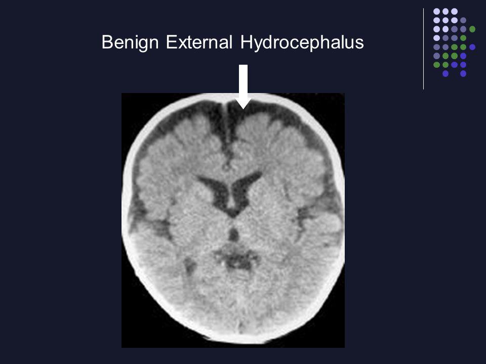 Benign External Hydrocephalus