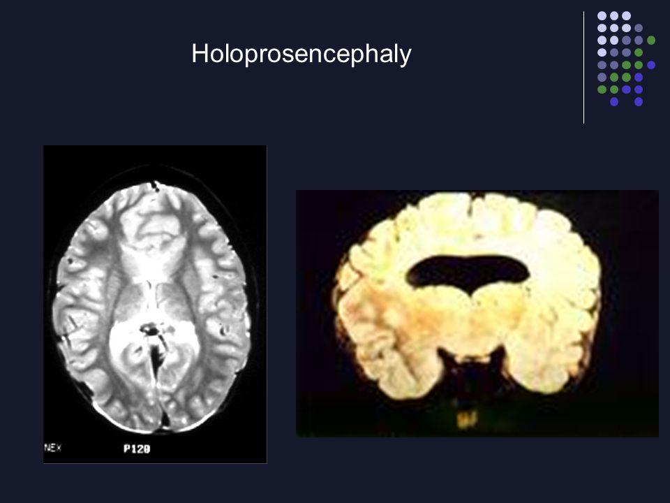 Holoprosencephaly