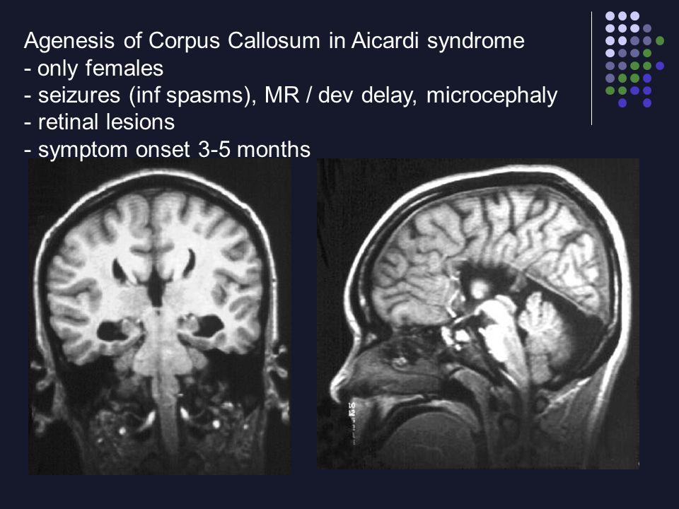 Agenesis of Corpus Callosum in Aicardi syndrome
