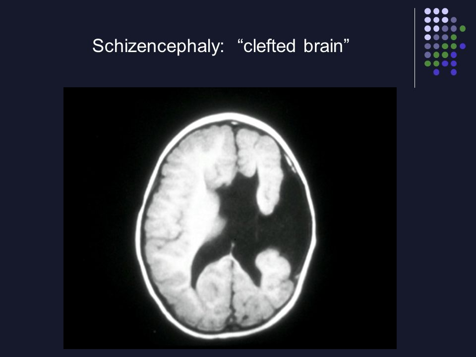Schizencephaly: clefted brain
