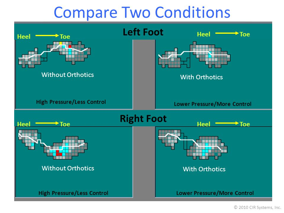 Compare Two Conditions