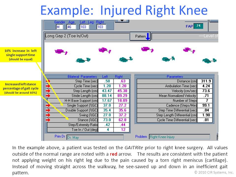 Example: Injured Right Knee