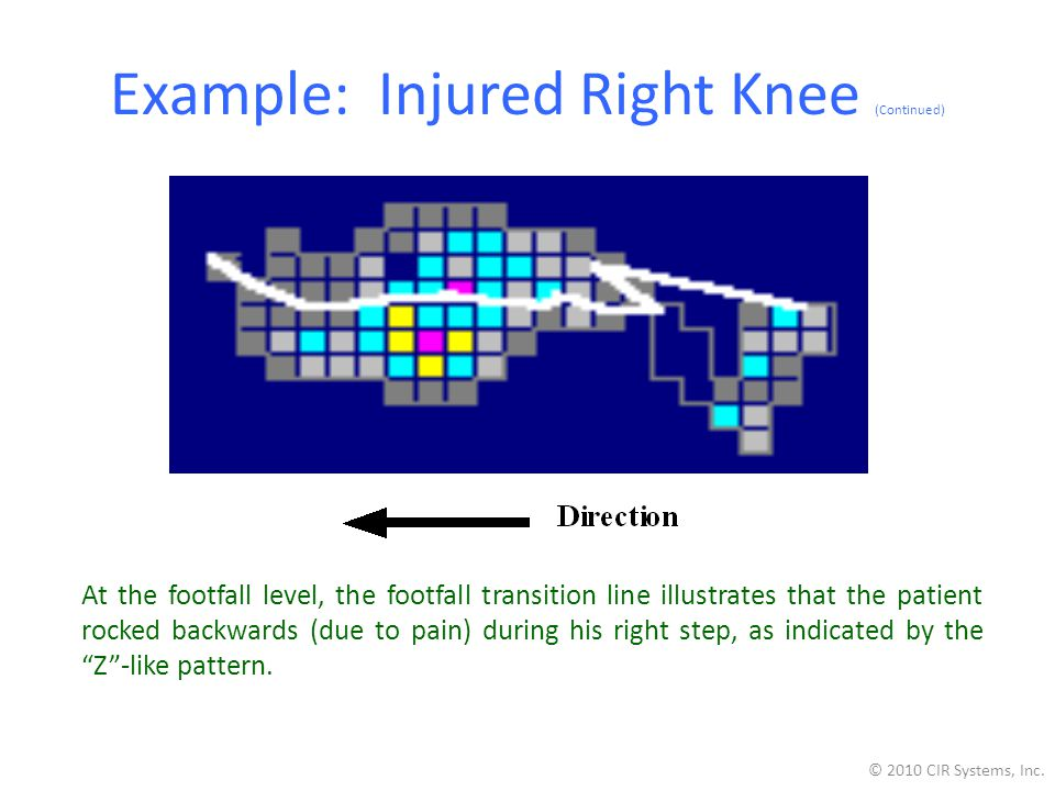 Example: Injured Right Knee (Continued)
