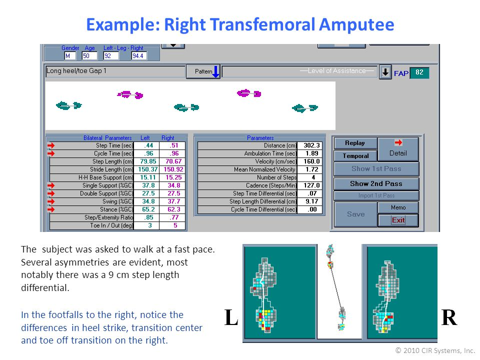 Example: Right Transfemoral Amputee