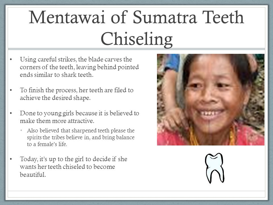 Mentawai of Sumatra Teeth Chiseling
