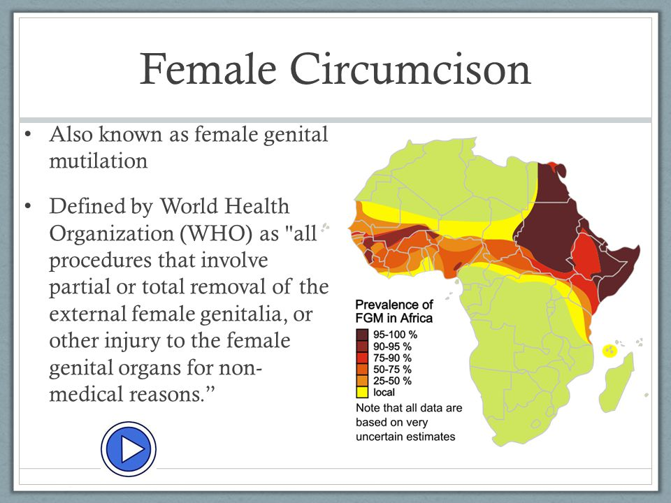 Female Circumcison Also known as female genital mutilation
