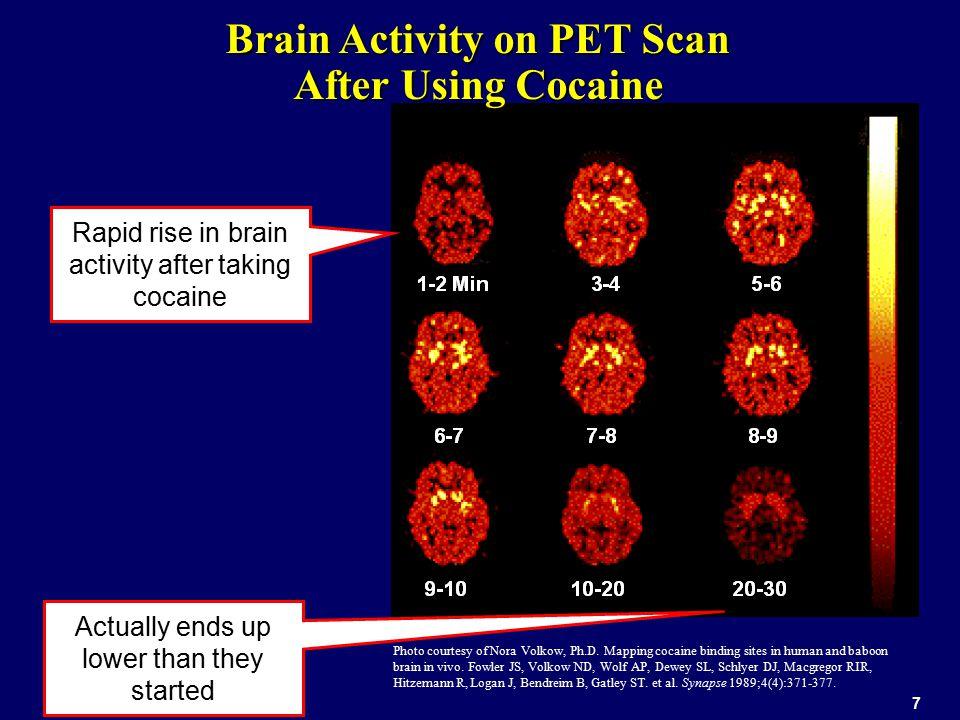 Brain Activity on PET Scan