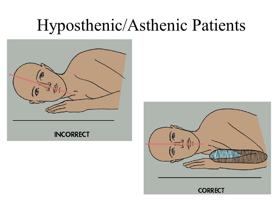 Hyposthenic/Asthenic Patients