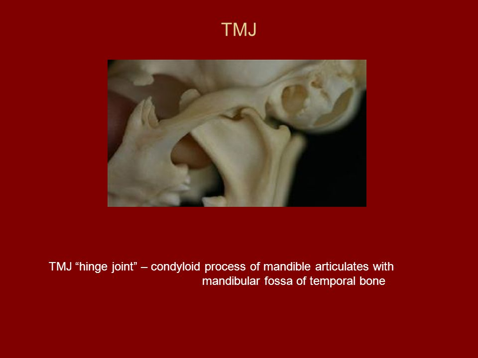 TMJ TMJ hinge joint – condyloid process of mandible articulates with mandibular fossa of temporal bone.