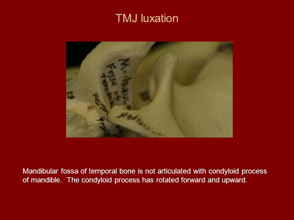 TMJ luxation