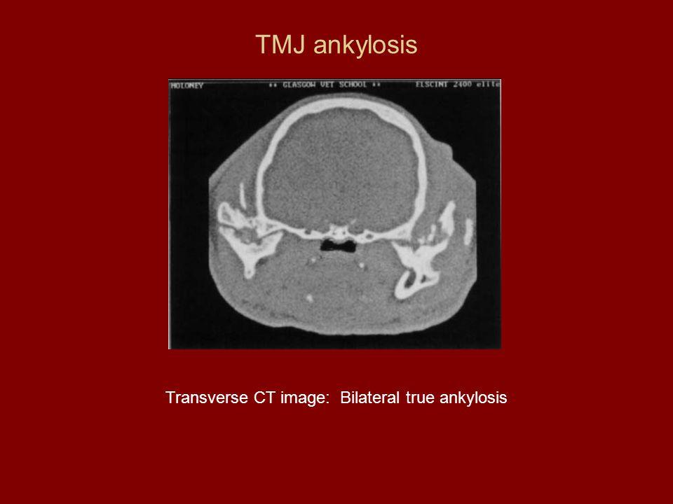 Transverse CT image: Bilateral true ankylosis