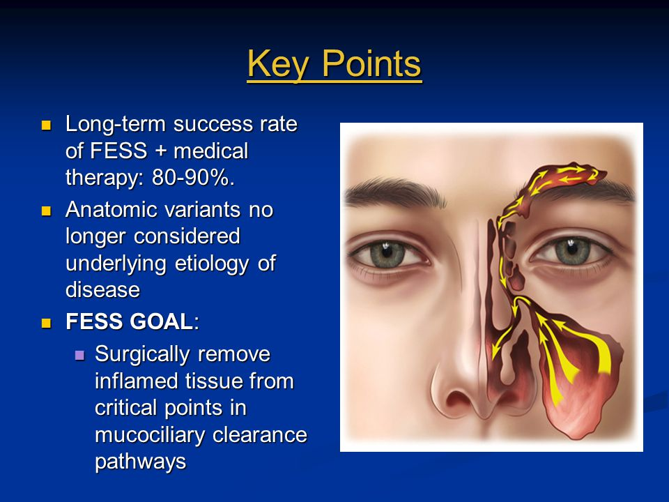 Key Points Long-term success rate of FESS + medical therapy: 80-90%.