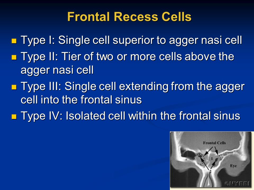 Frontal Recess Cells Type I: Single cell superior to agger nasi cell