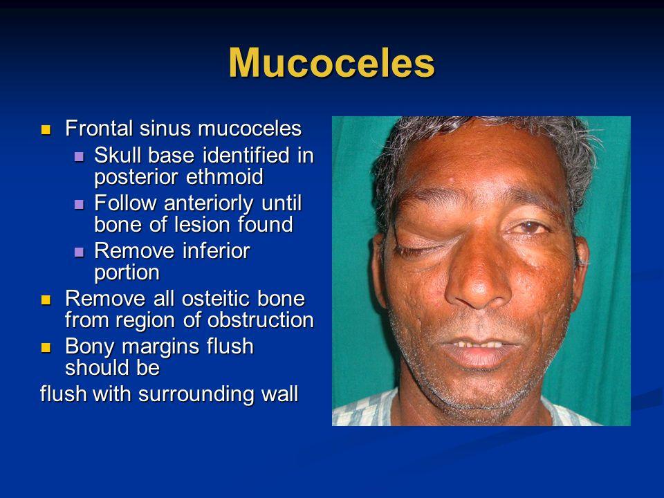 Mucoceles Frontal sinus mucoceles