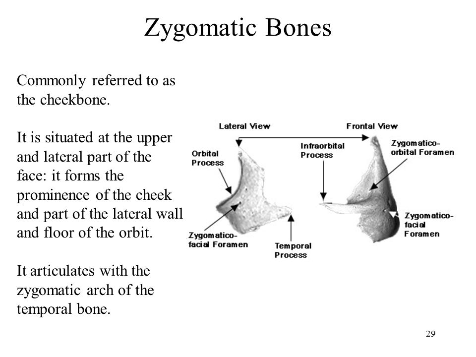 Zygomatic Bones Commonly referred to as the cheekbone.