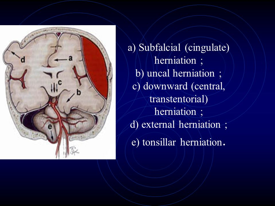 a) Subfalcial (cingulate) herniation ; b) uncal herniation ; c) downward (central, transtentorial) herniation ; d) external herniation ; e) tonsillar herniation.