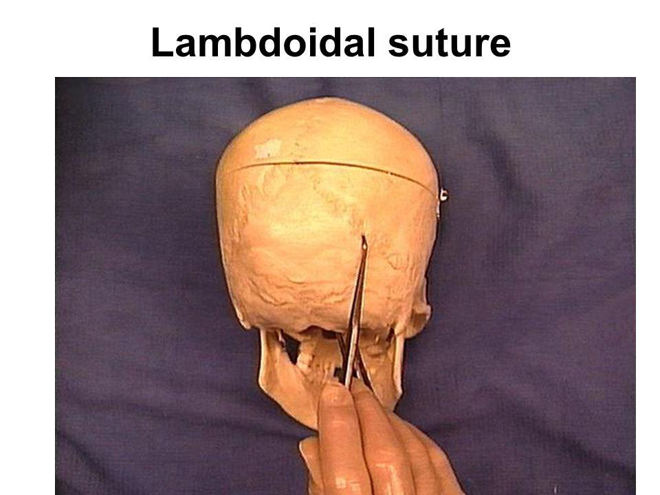 Lambdoidal suture