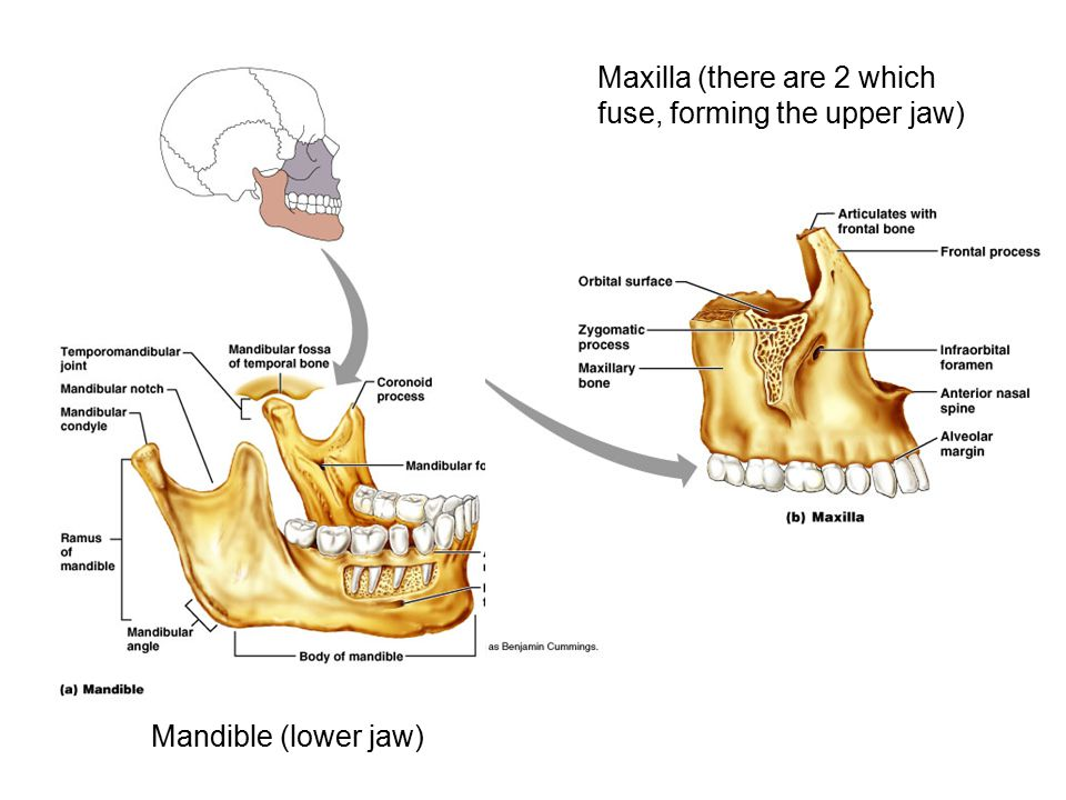 Maxilla (there are 2 which fuse, forming the upper jaw)
