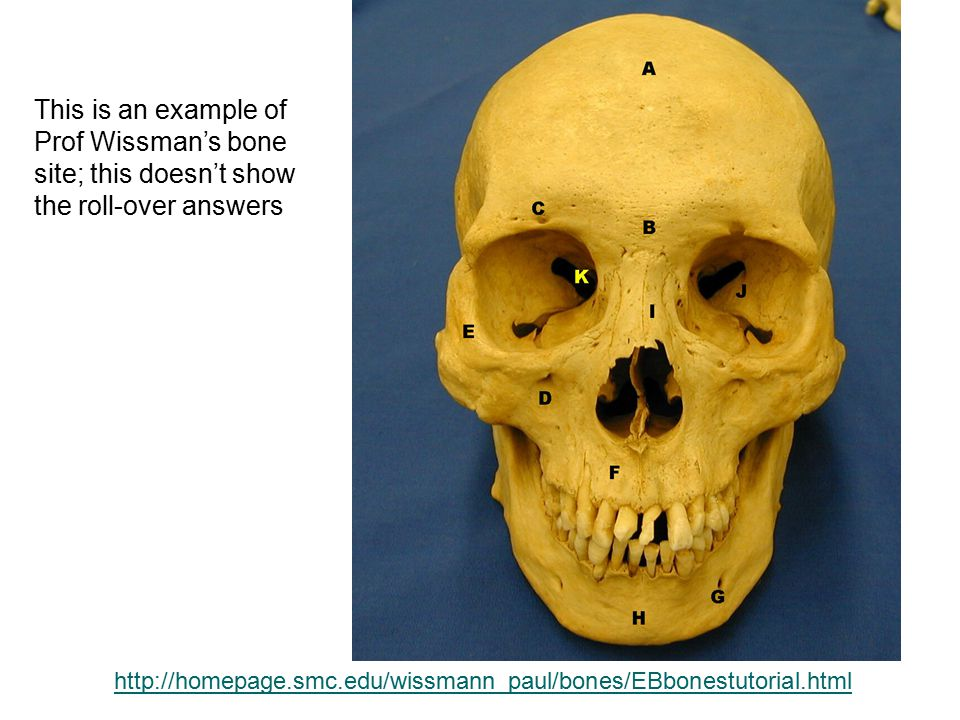 Prof Wissman's bone site; this doesn't show the roll-over answers