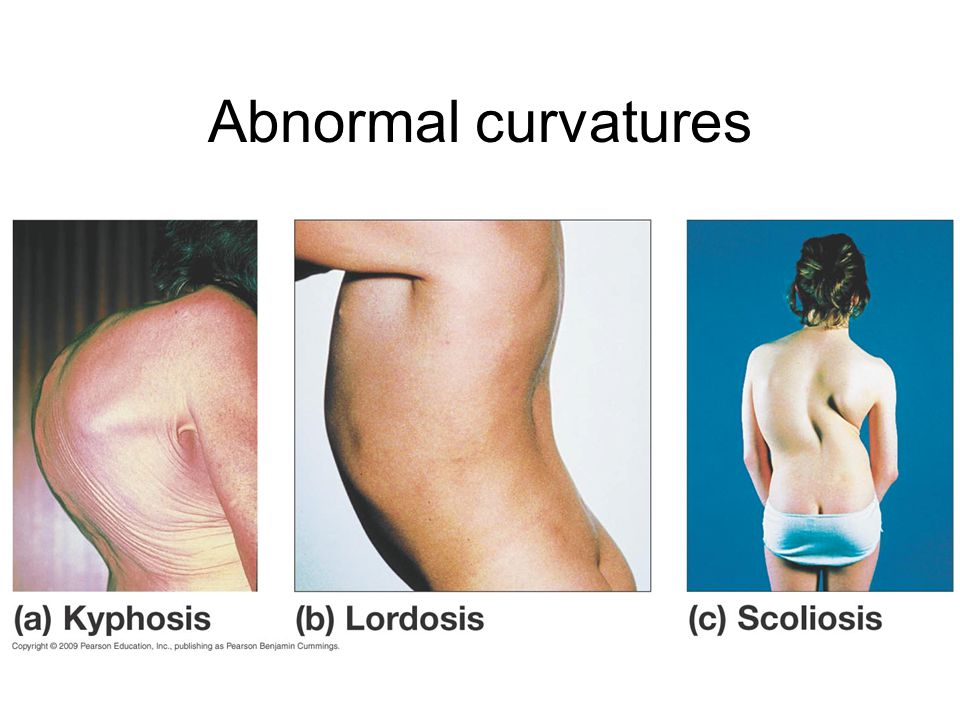 Abnormal curvatures