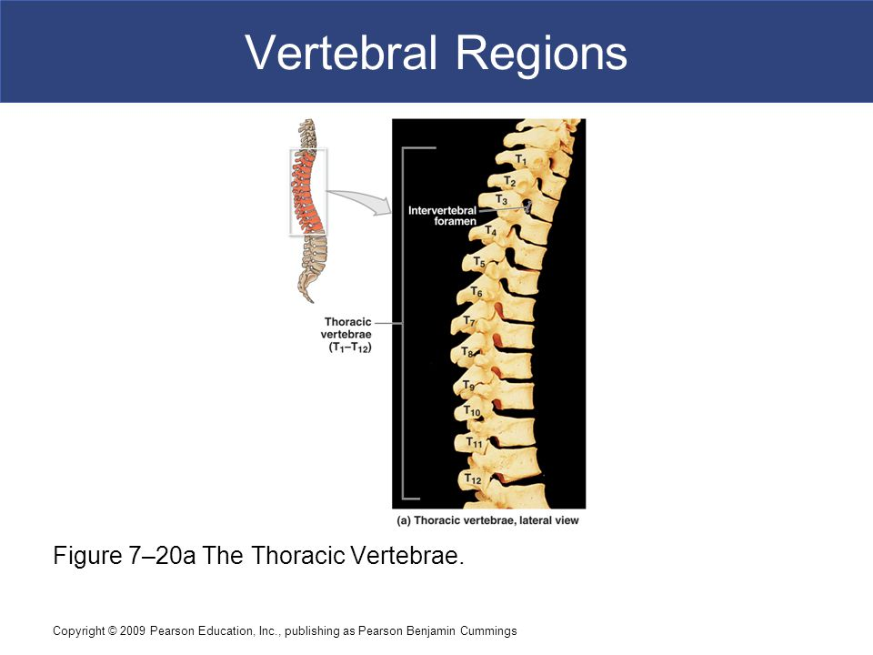 Vertebral Regions Figure 7–20a The Thoracic Vertebrae.