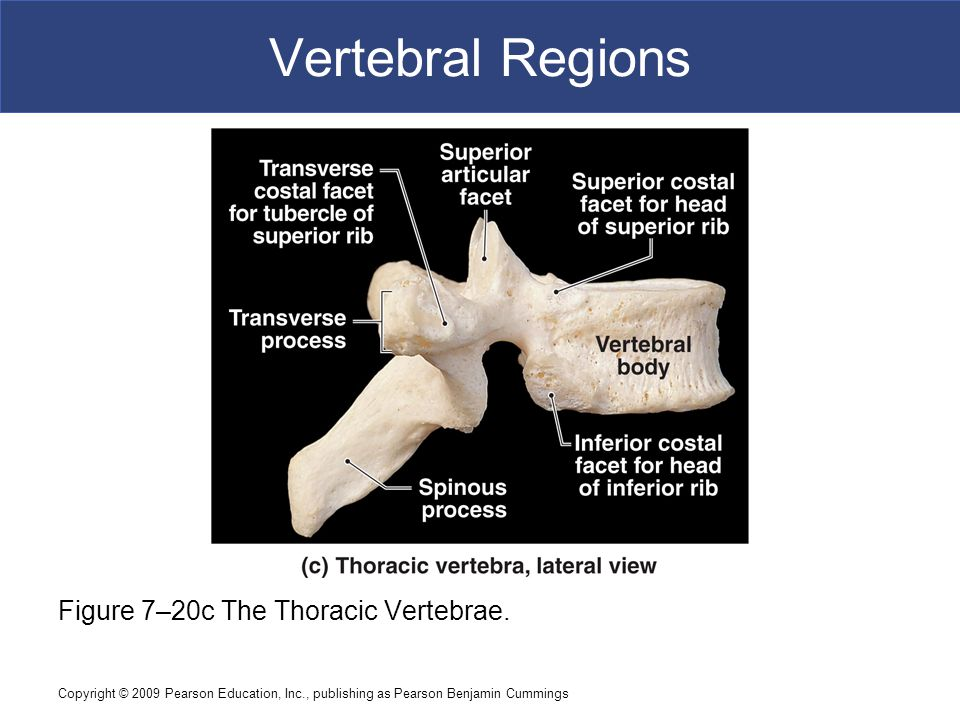 Vertebral Regions Figure 7–20c The Thoracic Vertebrae.