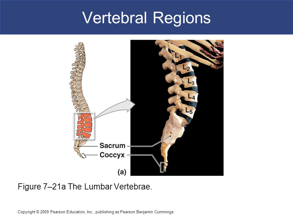Vertebral Regions Figure 7–21a The Lumbar Vertebrae.