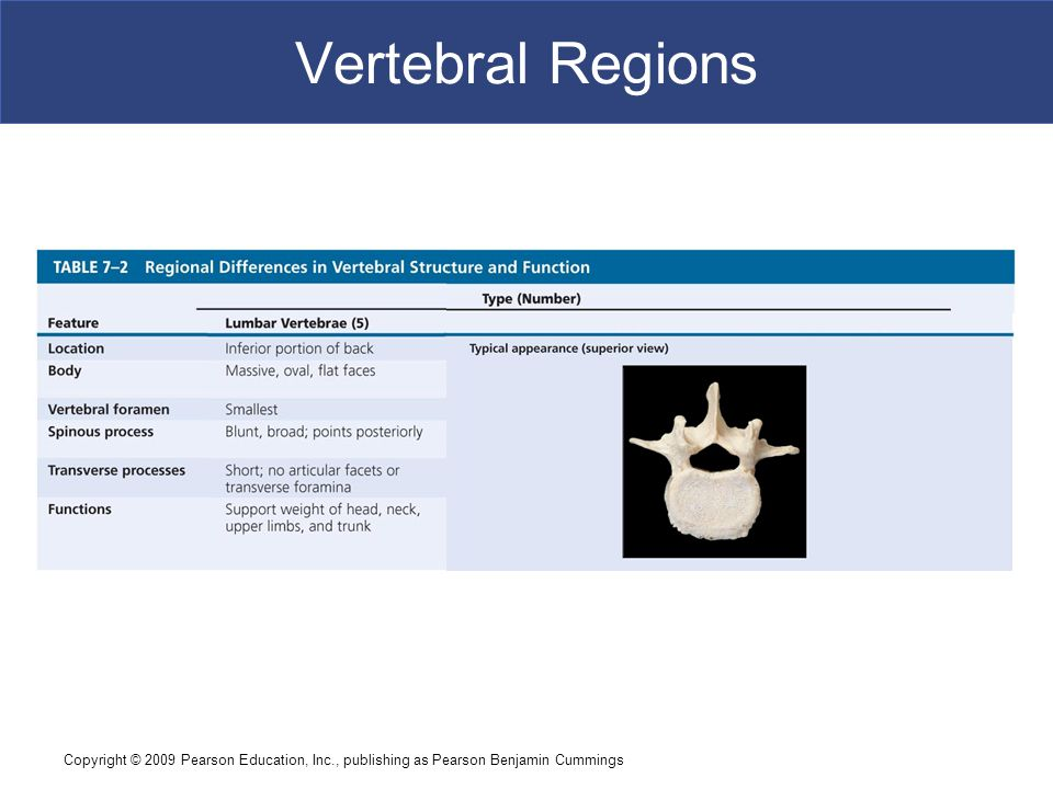 Vertebral Regions Copyright © 2009 Pearson Education, Inc., publishing as Pearson Benjamin Cummings