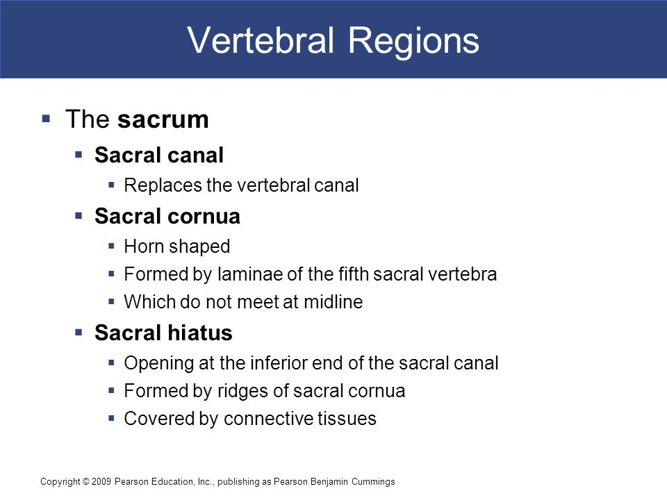 Vertebral Regions The sacrum Sacral canal Sacral cornua Sacral hiatus