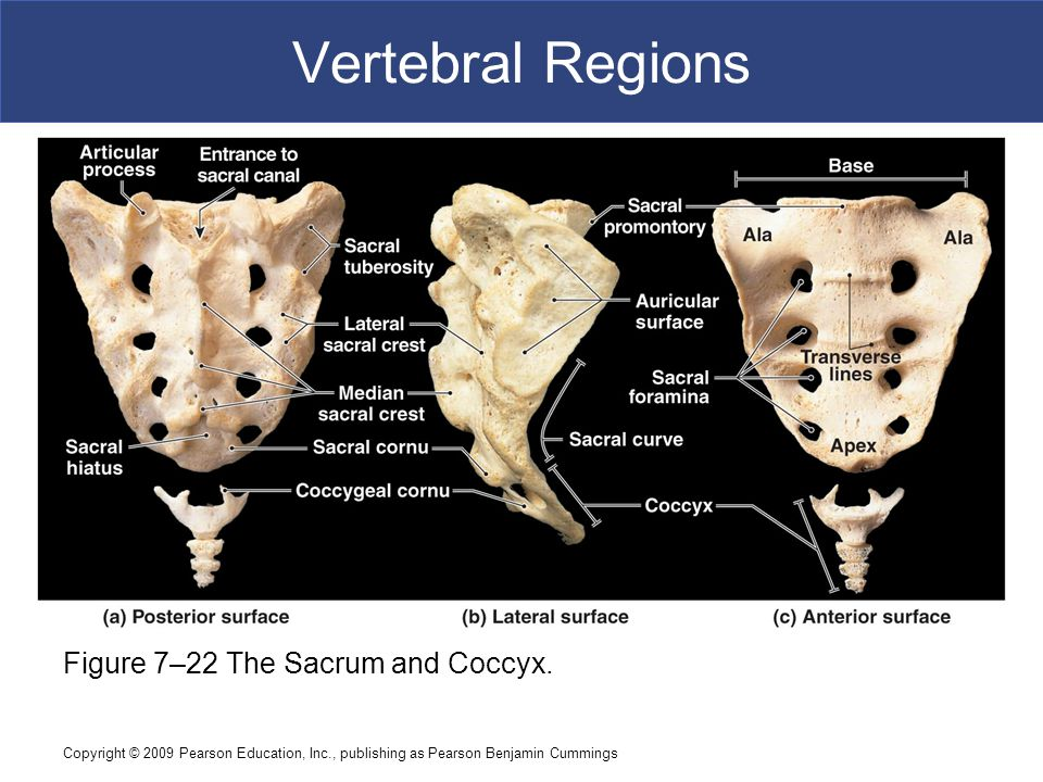 Vertebral Regions Figure 7–22 The Sacrum and Coccyx.