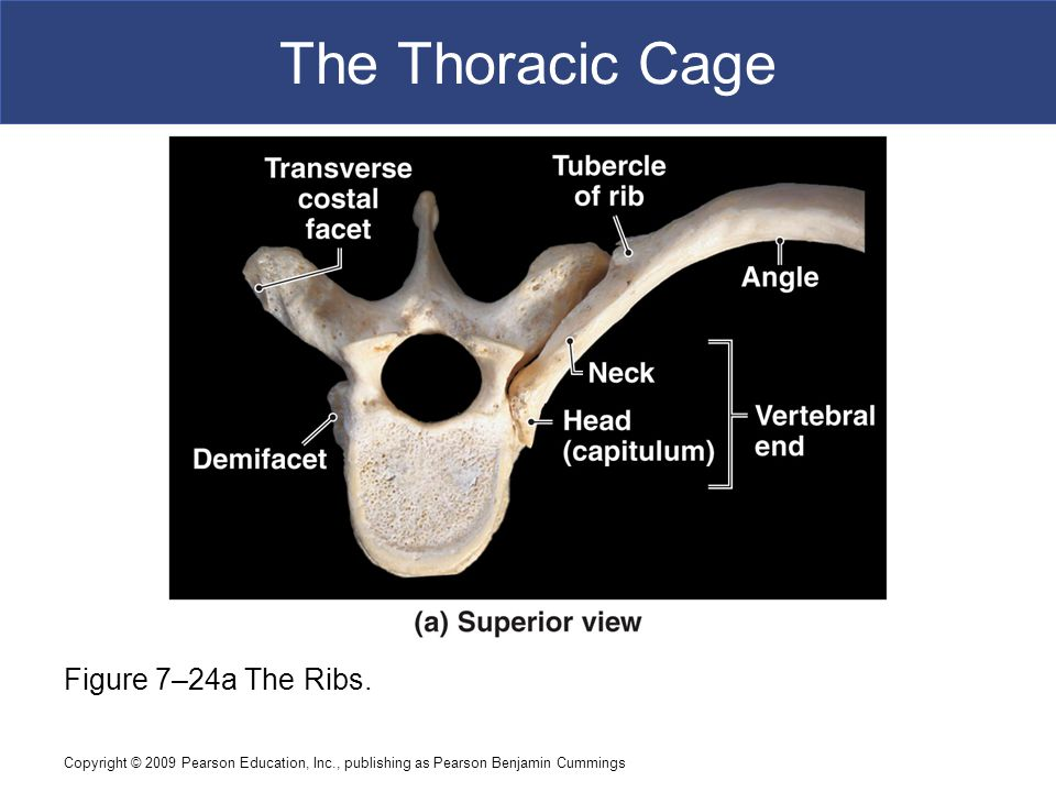 The Thoracic Cage Figure 7–24a The Ribs.