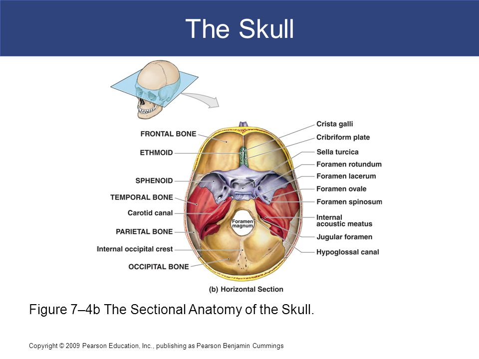 The Skull Figure 7–4b The Sectional Anatomy of the Skull.