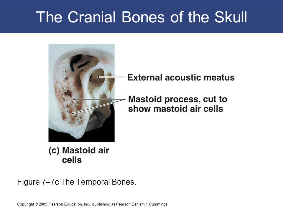 The Cranial Bones of the Skull