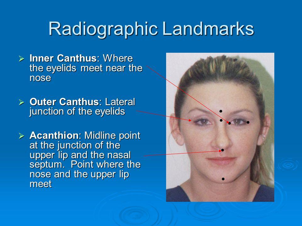 Radiographic Landmarks