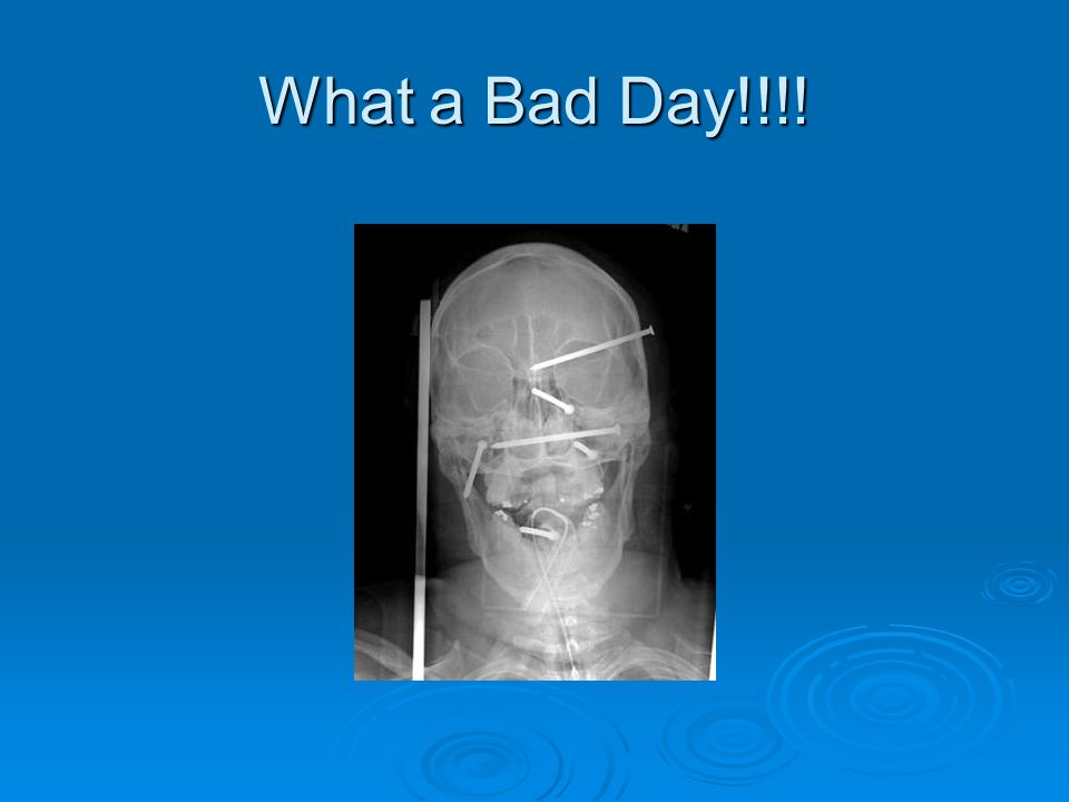 What a Bad Day!!!!