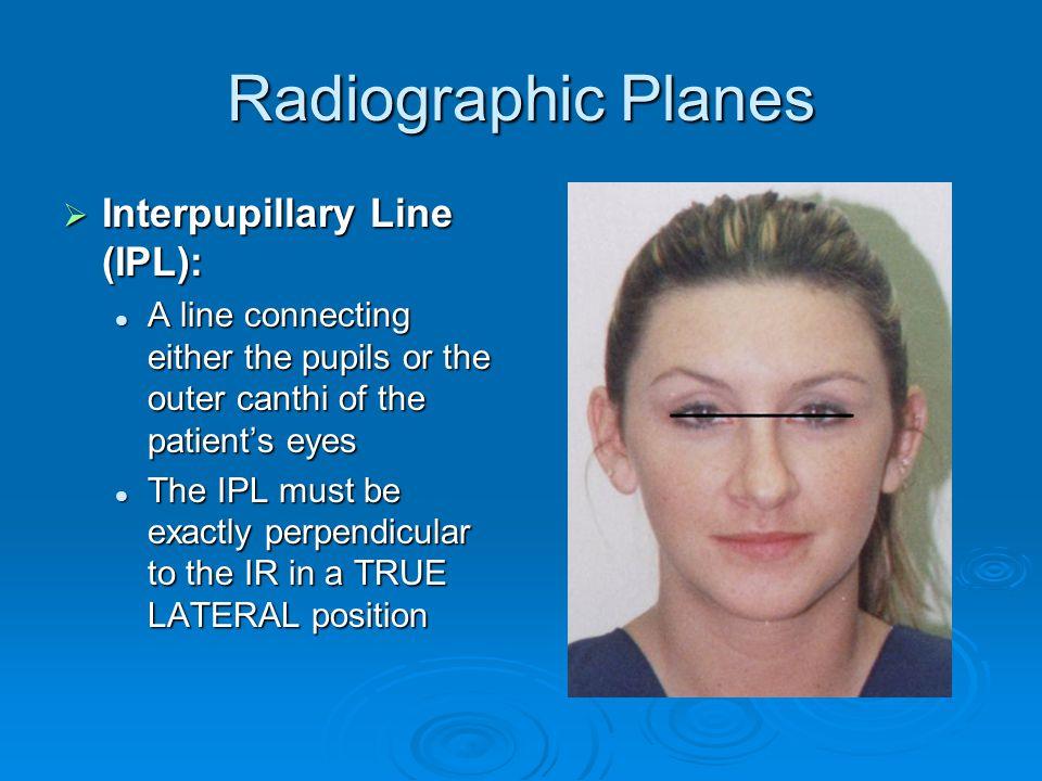Radiographic Planes Interpupillary Line (IPL):