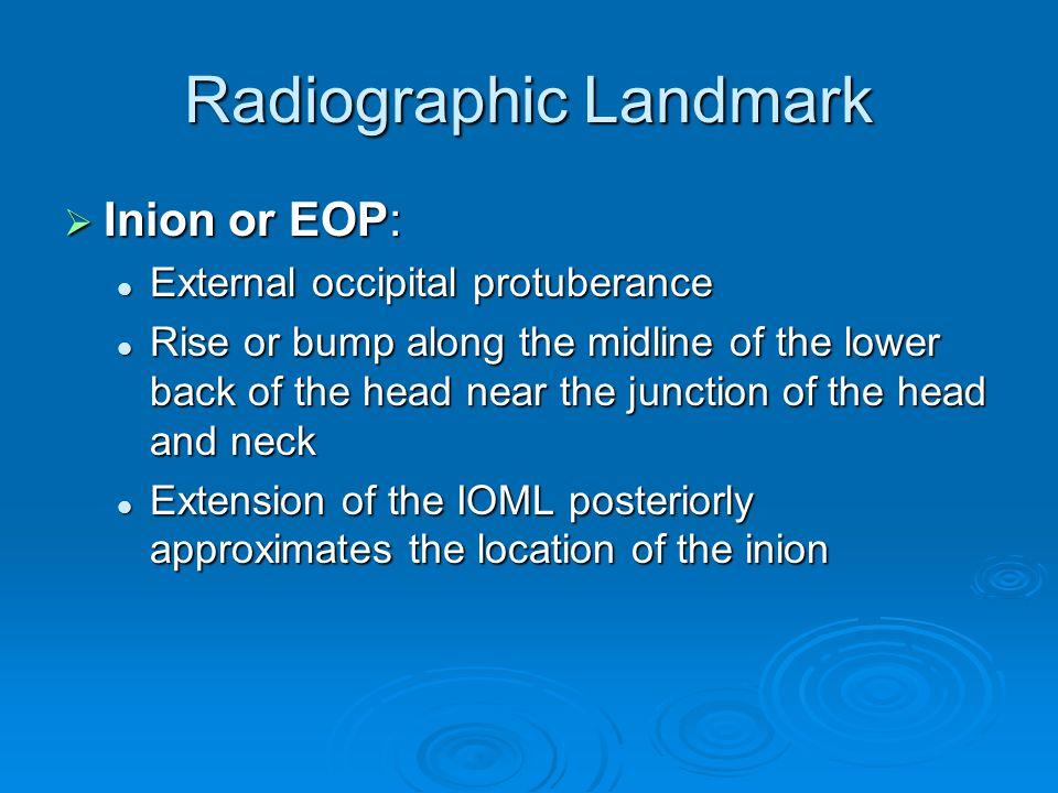 Radiographic Landmark