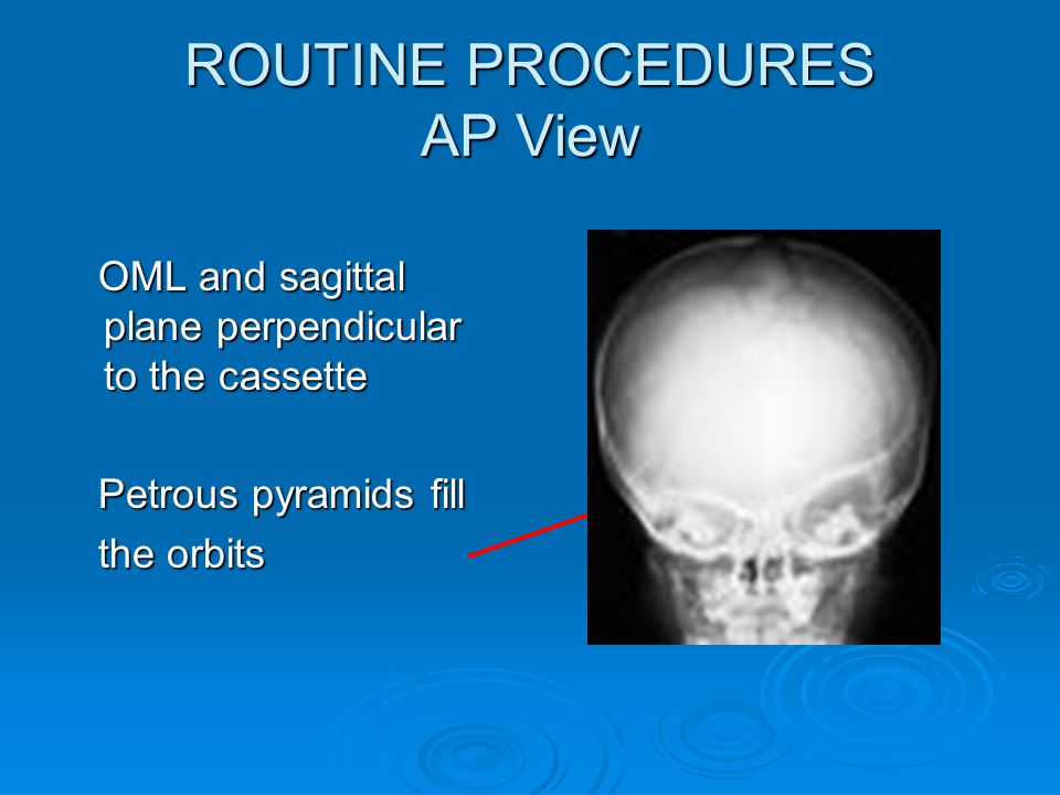 ROUTINE PROCEDURES AP View