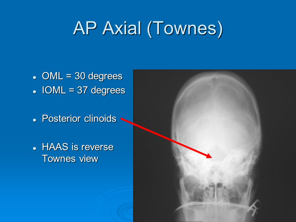 AP Axial (Townes) OML = 30 degrees IOML = 37 degrees