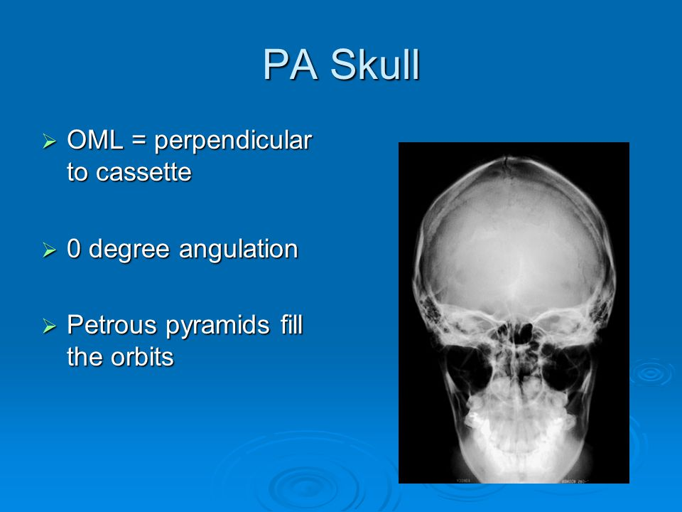 PA Skull OML = perpendicular to cassette 0 degree angulation