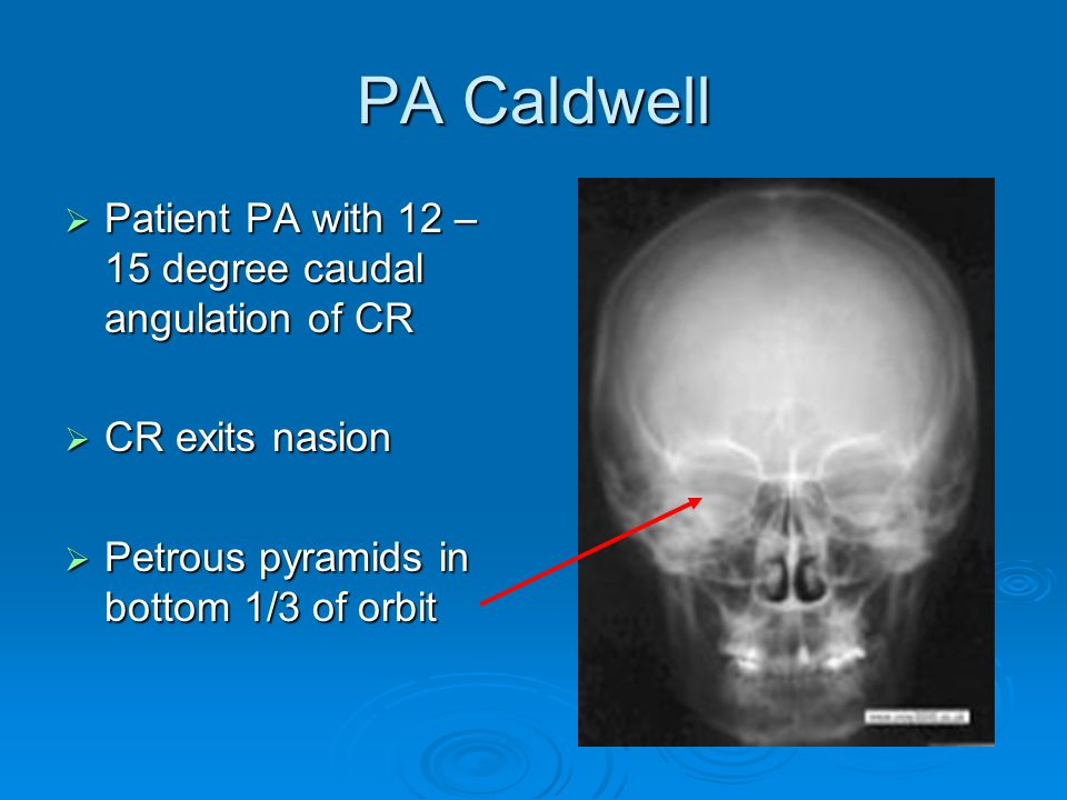 PA Caldwell Patient PA with 12 – 15 degree caudal angulation of CR