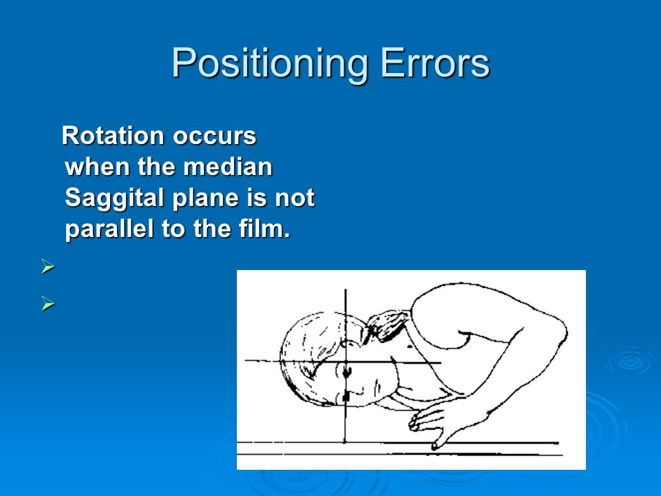 Positioning Errors Rotation occurs when the median Saggital plane is not parallel to the film.