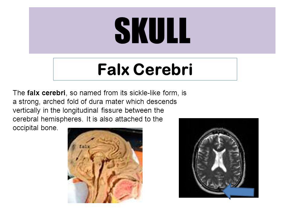 SKULL Falx Cerebri.