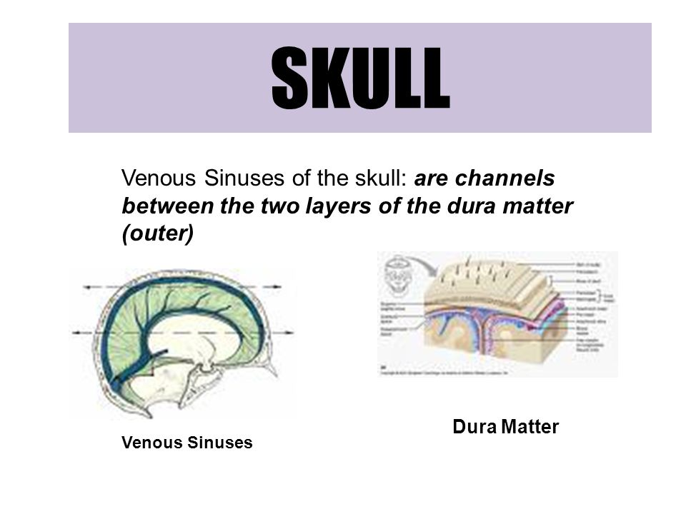 SKULL Venous Sinuses of the skull: are channels between the two layers of the dura matter (outer) Dura Matter.