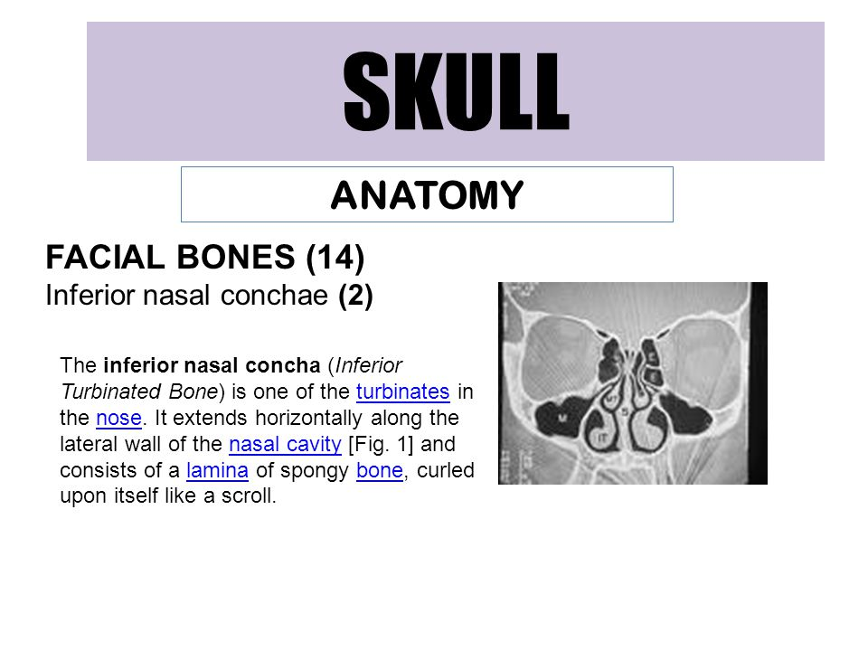 SKULL ANATOMY FACIAL BONES (14) Inferior nasal conchae (2)