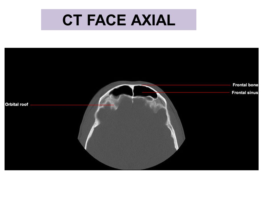 CT FACE AXIAL