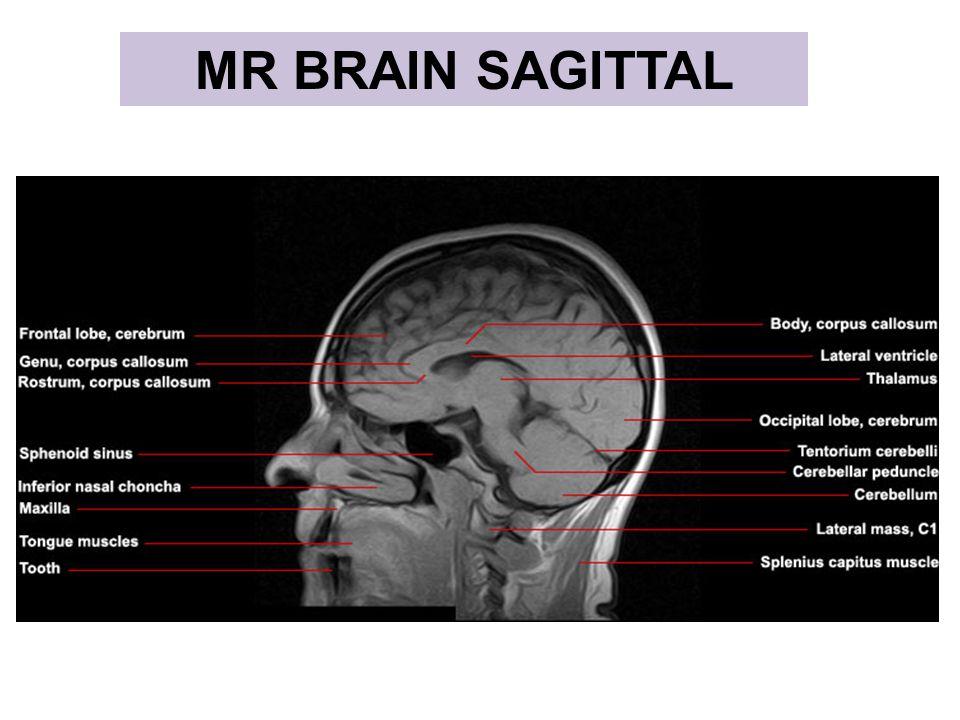 MR BRAIN SAGITTAL MR FACE CORONAL