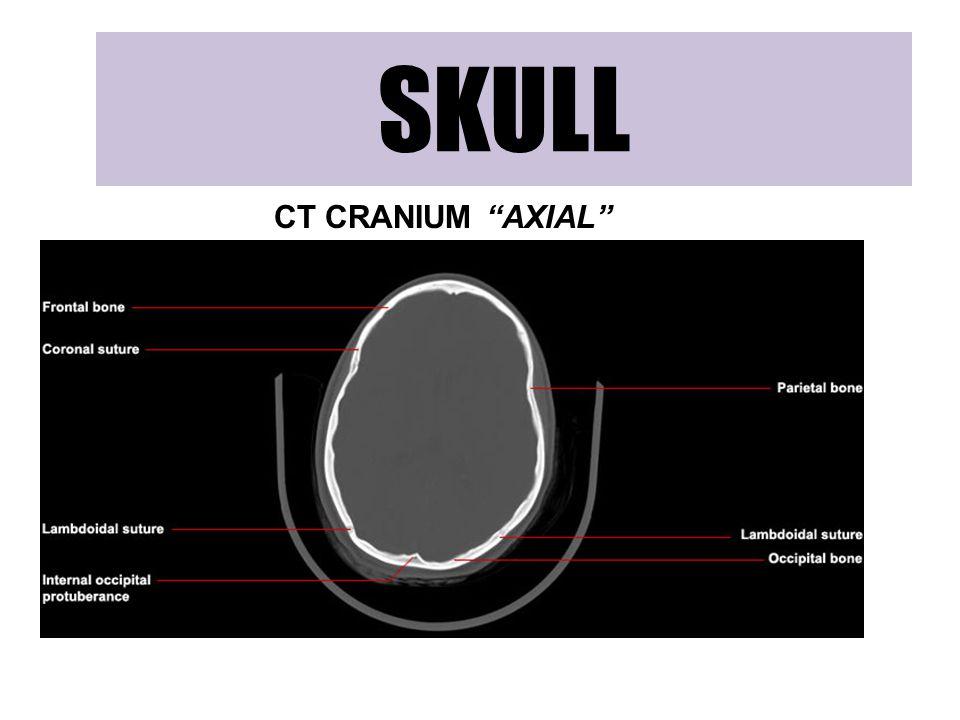 SKULL CT CRANIUM AXIAL